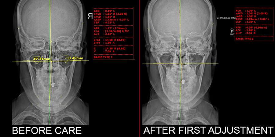 Xrays before and after treatment at The Head & Spine Pain Center, Trappe PA chiropractor