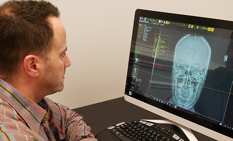 X-ray analysis at The Head and Spine Pain Center Trappe PA chiropractor